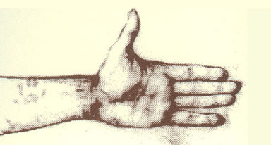 Image of hand